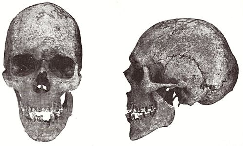 Dolichocephalic male skull from Hjadstrup on Fyn