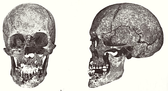 Dolichocephalic female skull from Almager on Sjælland
