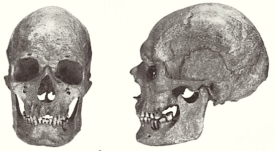 Dolichocephalic man skull from Vestre Egesborg on Stevns