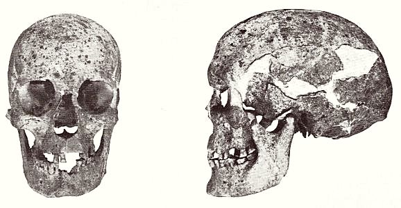 Dolichocephalic woman skull from Varpelev on Stevns