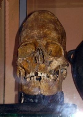 A typical deformed skull - Museum of Stavropol